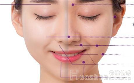 隆鼻安全吗?隆鼻鼻尖的方法有哪些?