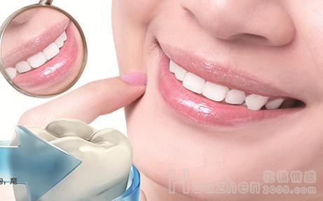 怎麼快速美白牙齒